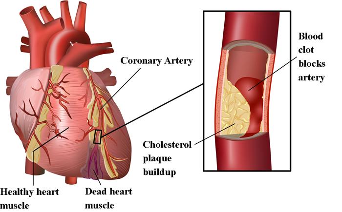 Plaque in heart